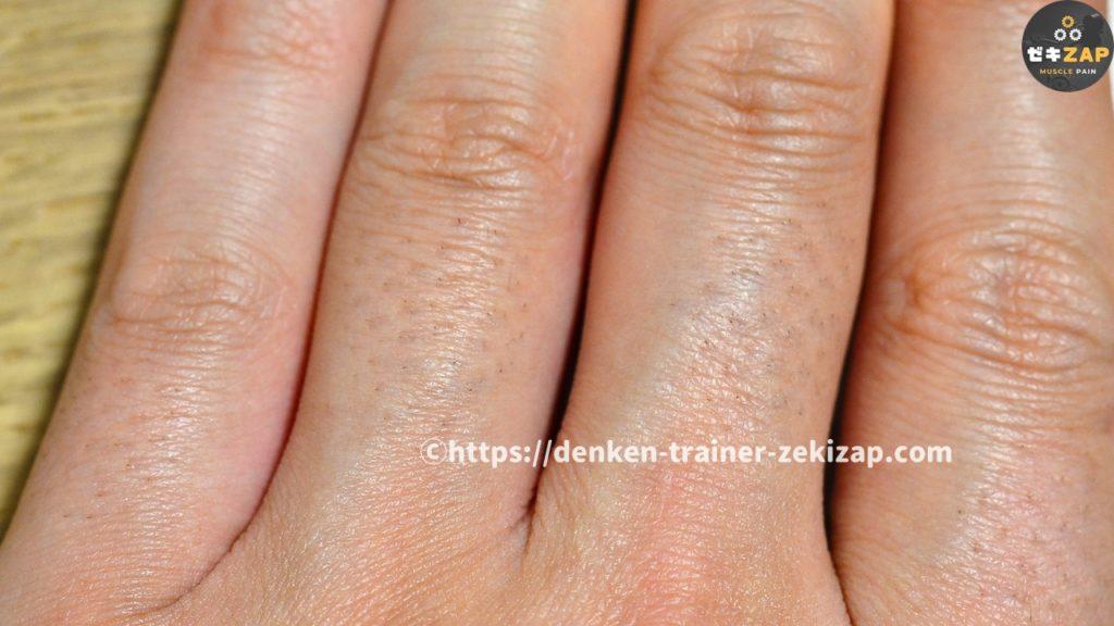 ケノンを4回照射して2週間後の指毛
